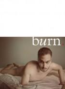 burn.02